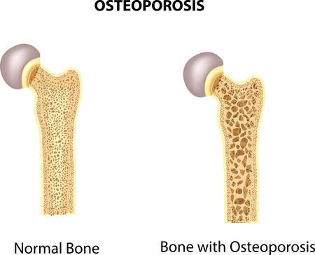 53334715_S_Osteoporosis_Bone_Feet.jpg