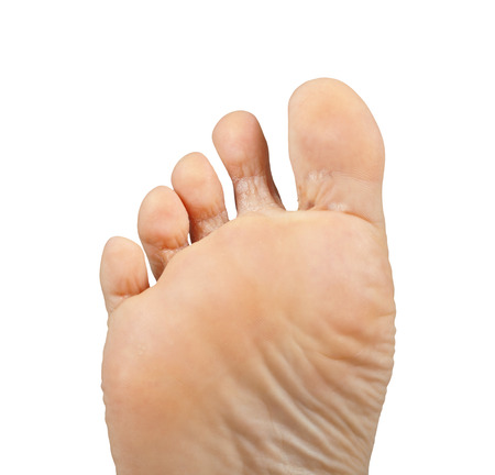 25659400_S_athletes_foot_fungus_toes.jpg