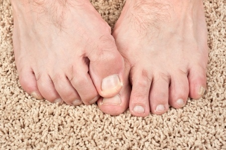15564518_S_Nail_Fungus_Toes_itch.jpg