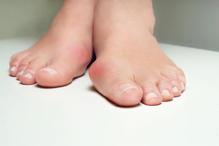 86039703_S_bunion_pain_toe_foot_toe_injury.jpg