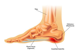 4 common causes of heel pain