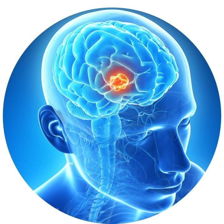 brain 3.jpg