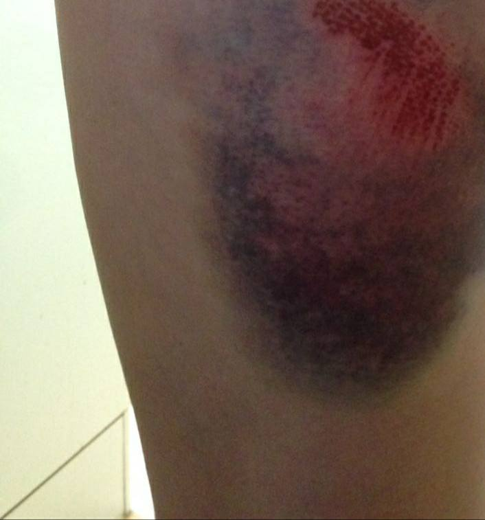 Ouch. Alice's bruise.