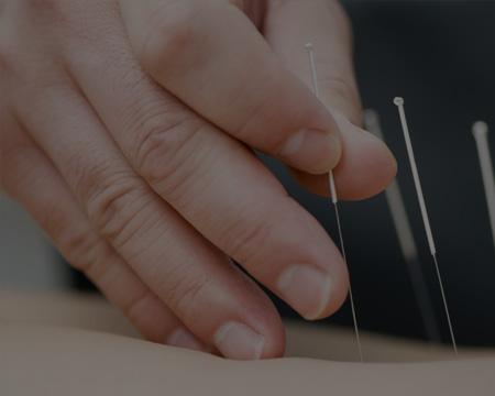 - AcupunctureTechniques