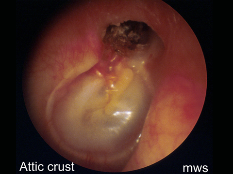 Wax is not normally present in the inner third of the ear canal. It's presence there may indicate inappropriate use of cotton buds to clean the ears of it may be a dried up crust, overlying more significant pathology such as a perforation or cholesteatoma.