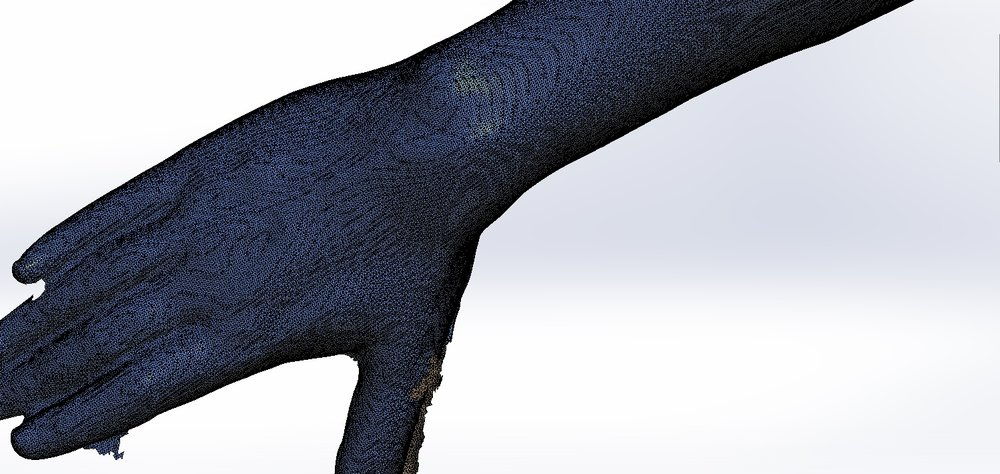 3D Scan of the wrist area of the patient