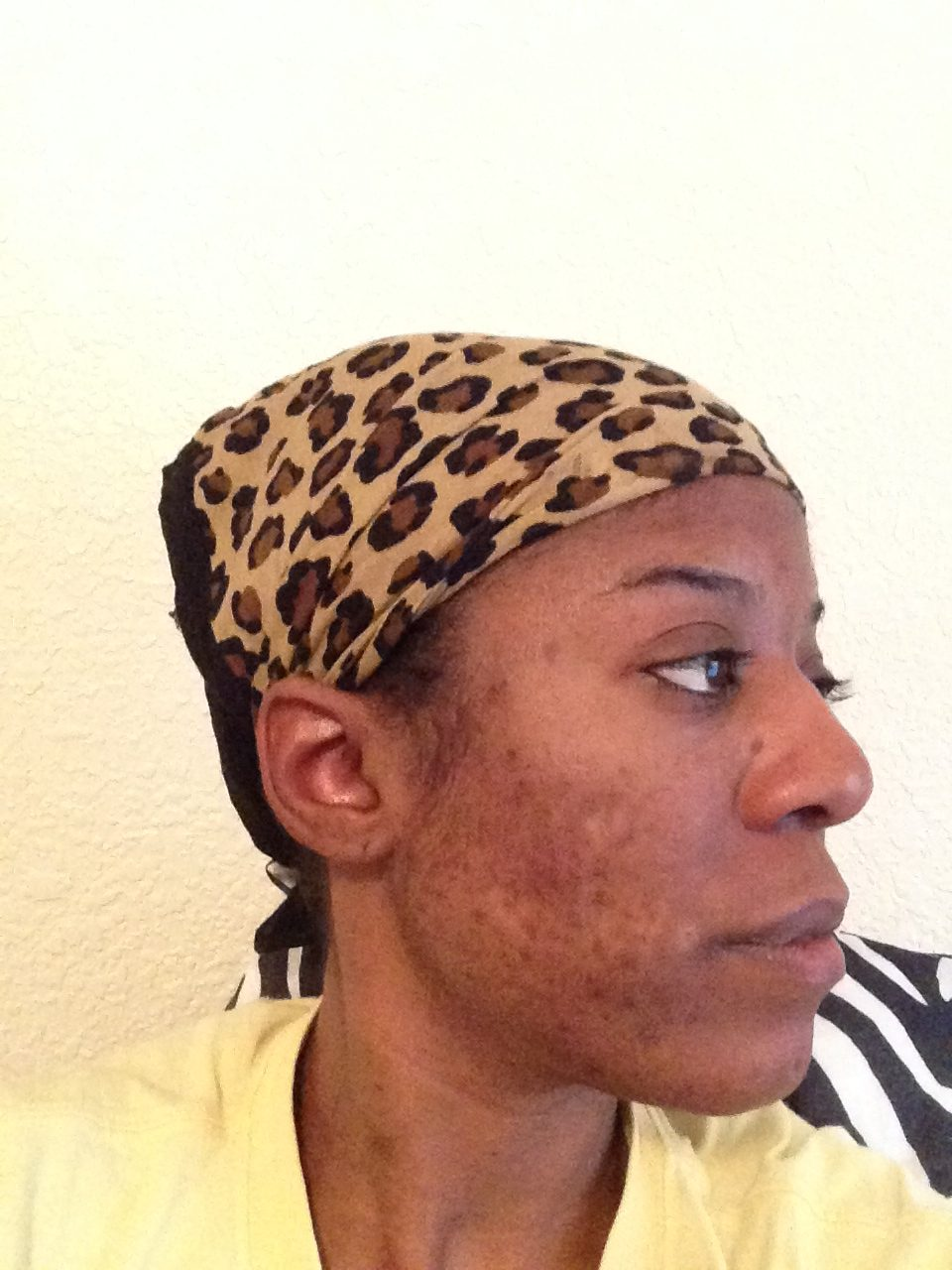 cure acne using african black soap.jpg