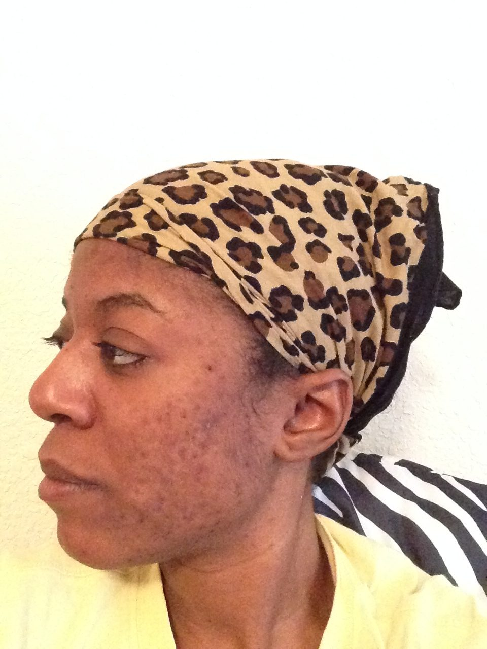 cure cystic acne using african black soap.jpg