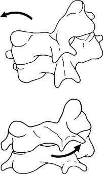 Figure 2. In the mid and lower cervical spine lateral flexion to the right is coupled with rotation of each segment to the right. In the upper cervical spine rotation to the right is coupled with a lateral flexion to the left.