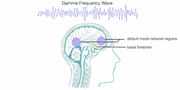 Hugo Gambo,  Eeg gamma , image by BrainPost,  CC BY-SA 3.0