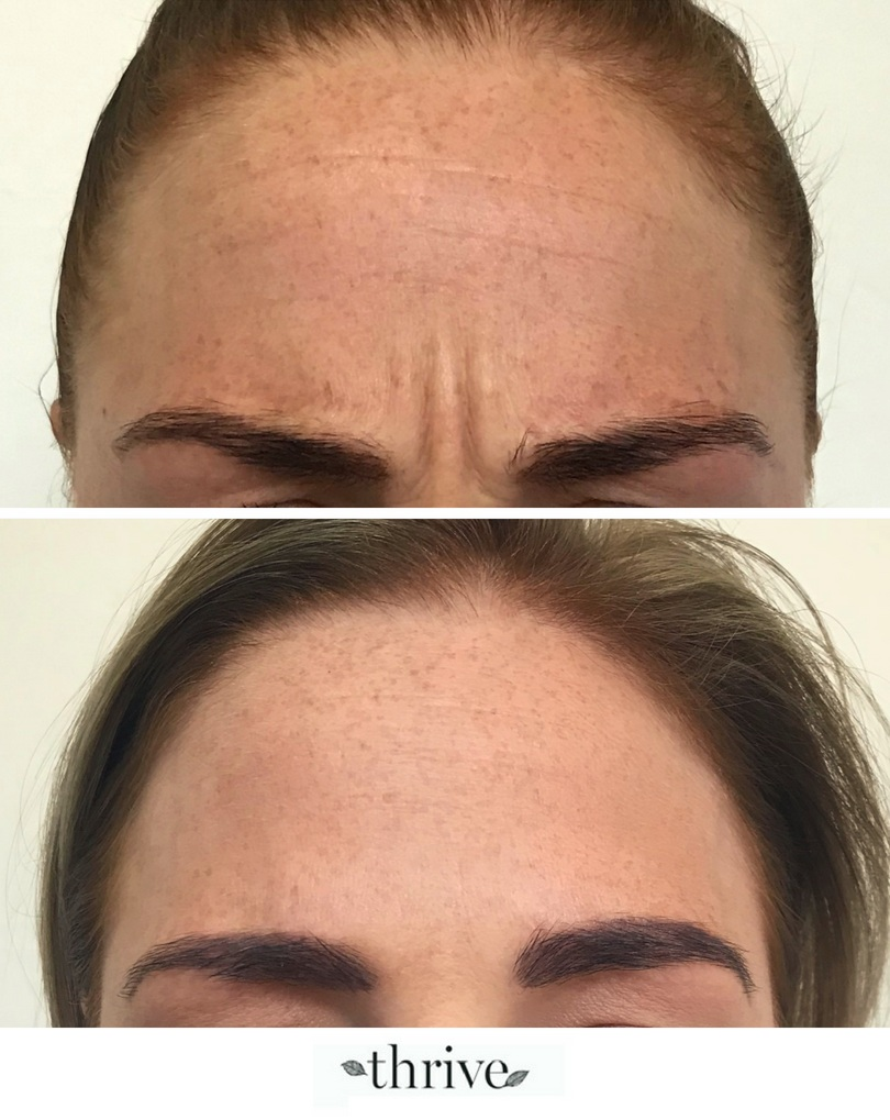 Before_After_Anti Wrinkle_between_brows_26_8_2018.png