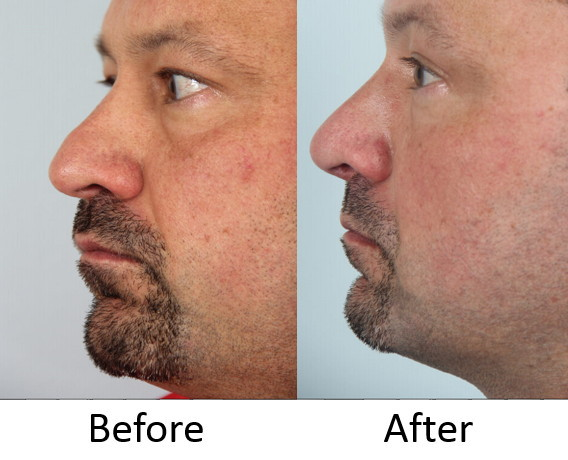 Before and after left lateral rhinoplasty