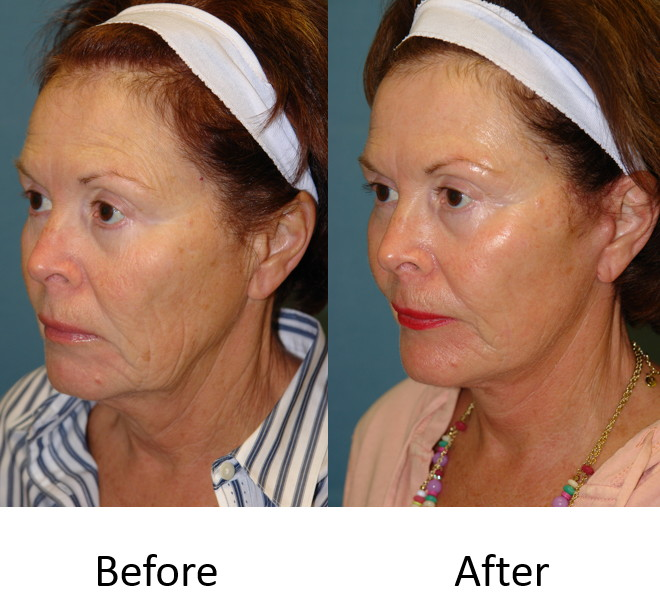 Actual patient with laser skin resurfacing and a facelift