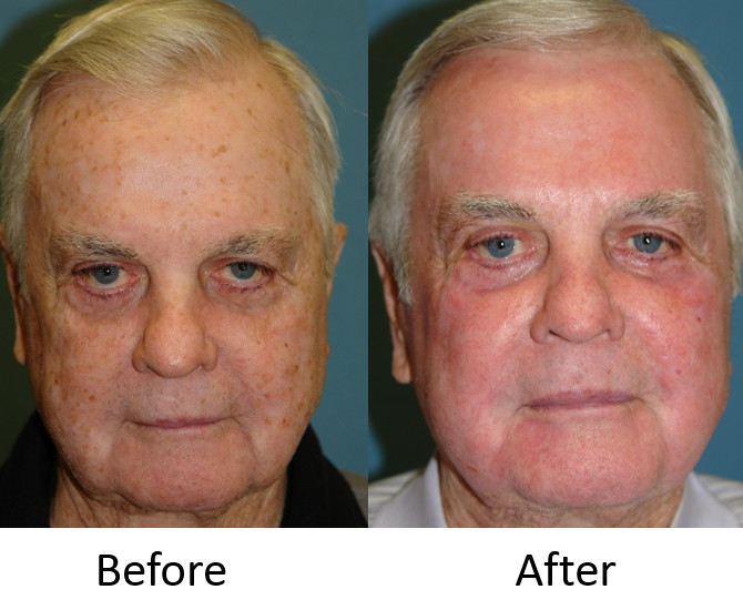 Actual Patient treated with a baker gordon phenol peel