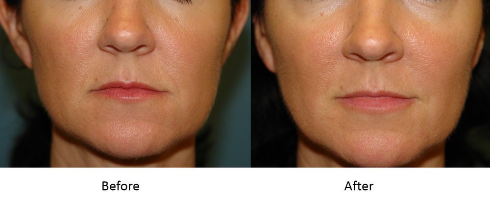 Actual patient with juvederm to her melolabial folds