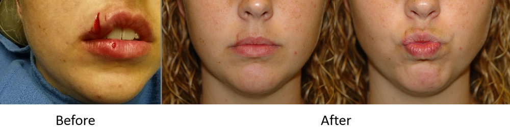 actual patient with a laceration of the lower lip repaired