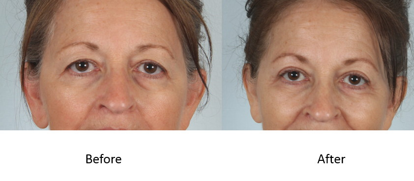 Before and after upper and lower blepharoplasty