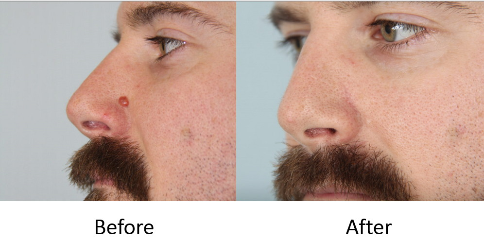 Before and after mole excision
