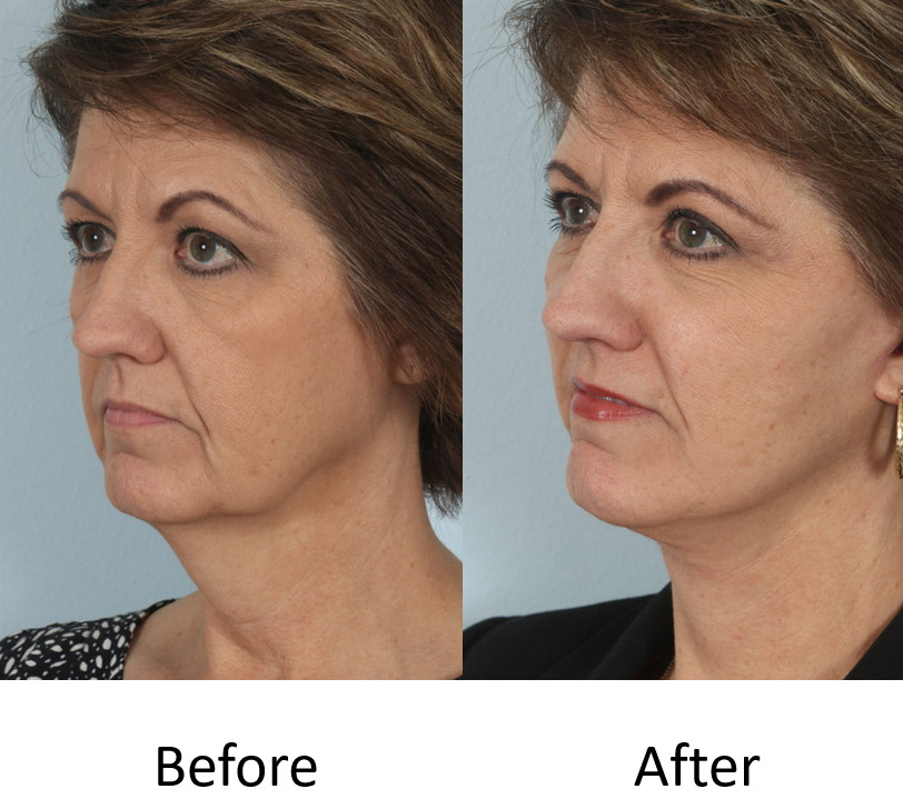 Before and after left facelift