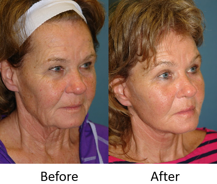Before and After Right Facelift