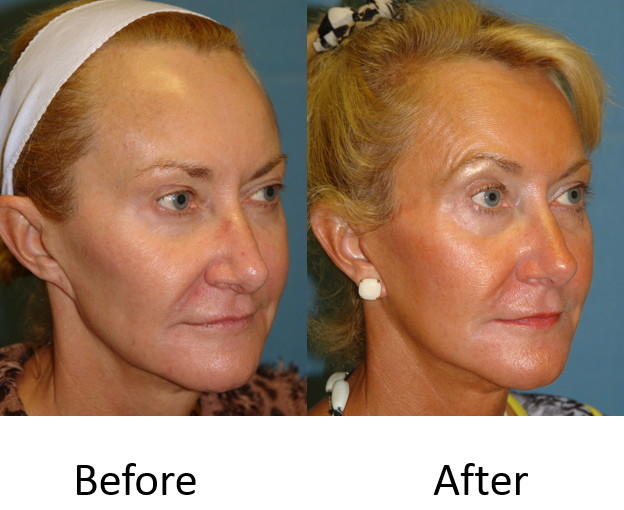 Before and after revision face lift
