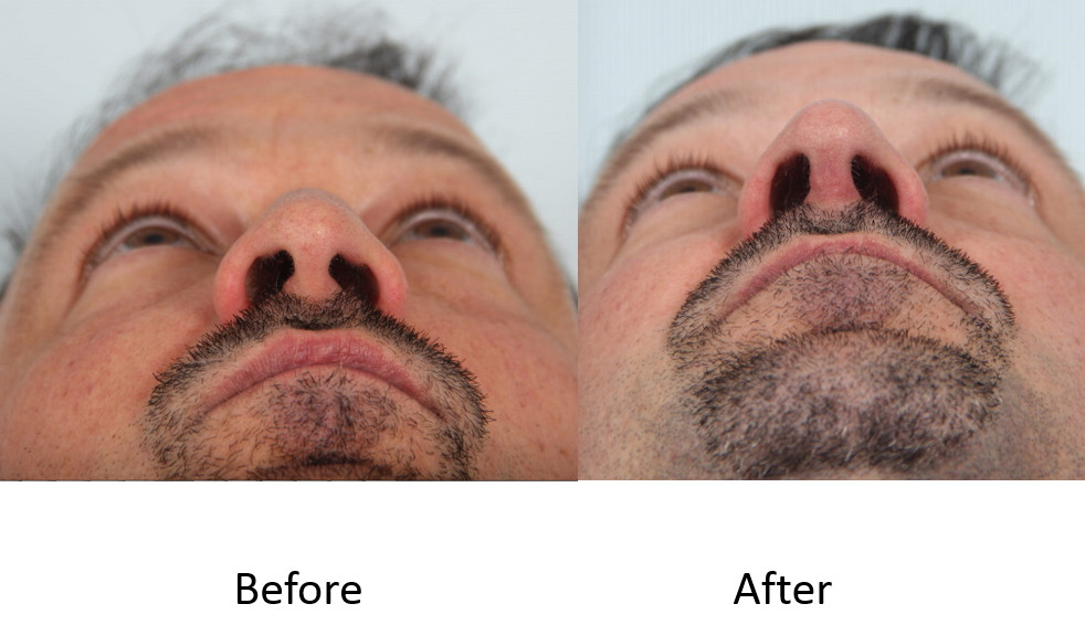 Before and after rhinoplasty basal view
