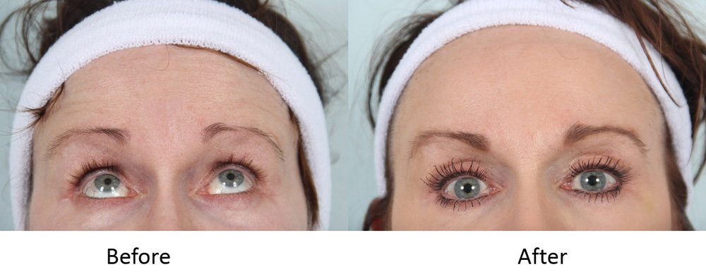 Before and After Botox to Forehead