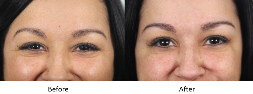 Before and after Botox to crow's feet