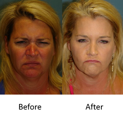 Before and after glabella Botox