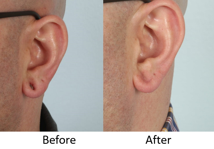 Before and after left ear.jpg