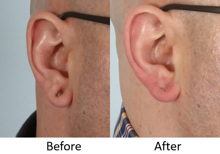 Before and after gauged earlobe repair