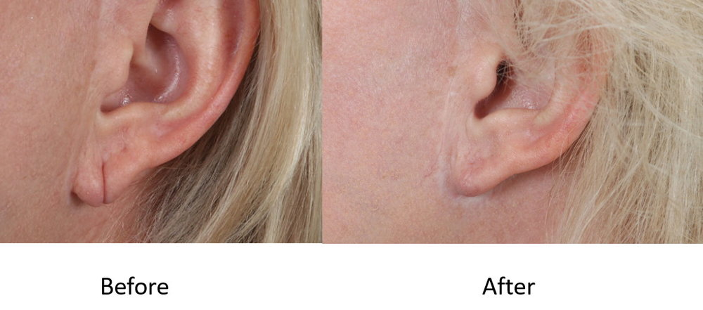 Before and after earlobe reduction