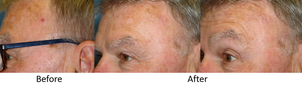 Before and After Skin Cancer Removal