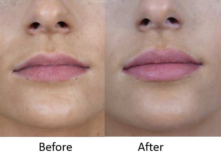 Before and After Lip Augmentation.jpg