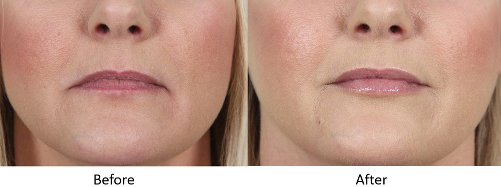 Before and after lip augmentation and marionette line correction