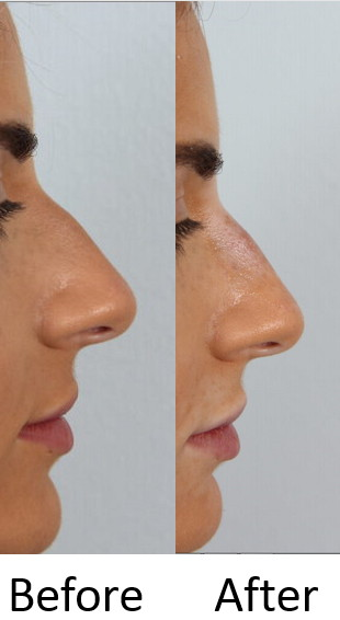 Before and After Filler rhinoplasty
