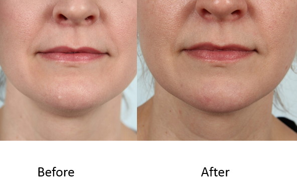 Before and after excisional mole removal