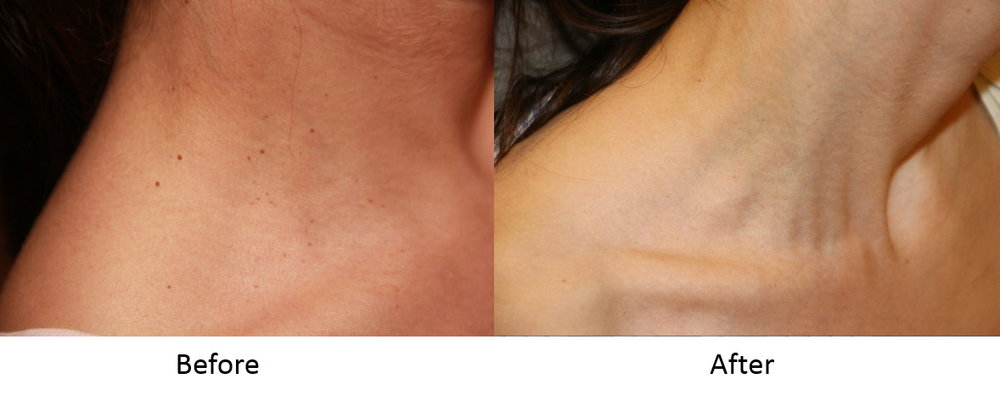 Before and after skin tag removal