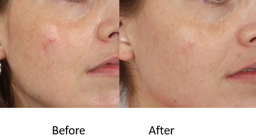 Before and After IPL facial veins