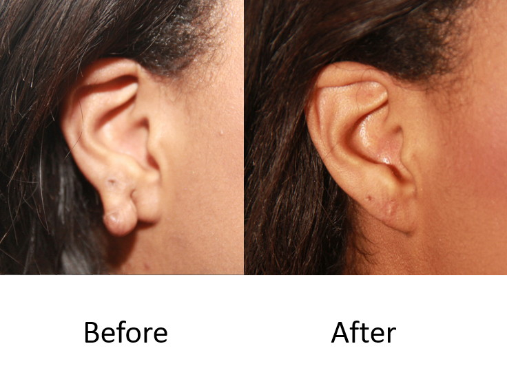 Before and after keloid excision