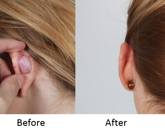 Before and After keloid scar excision