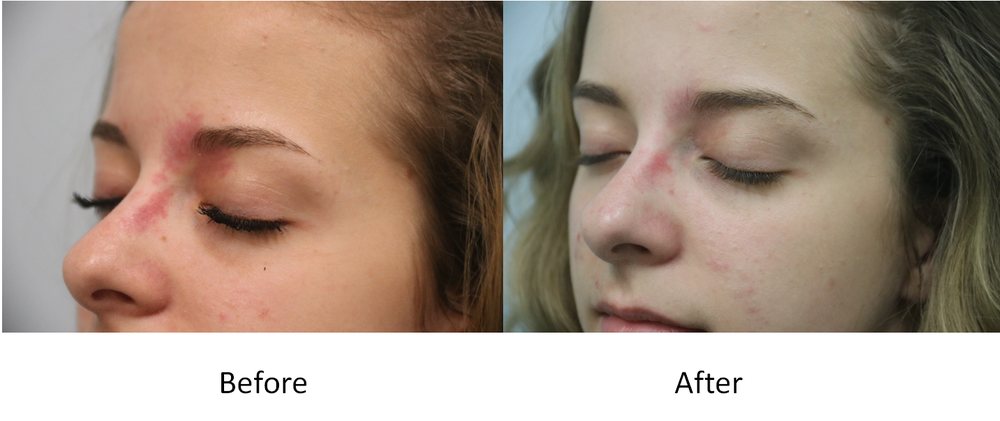 Before and after oblique port wine stain IPL treatment.png