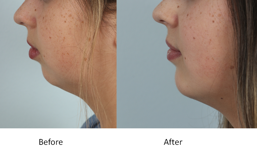 Before and After Chin Augmentation.png
