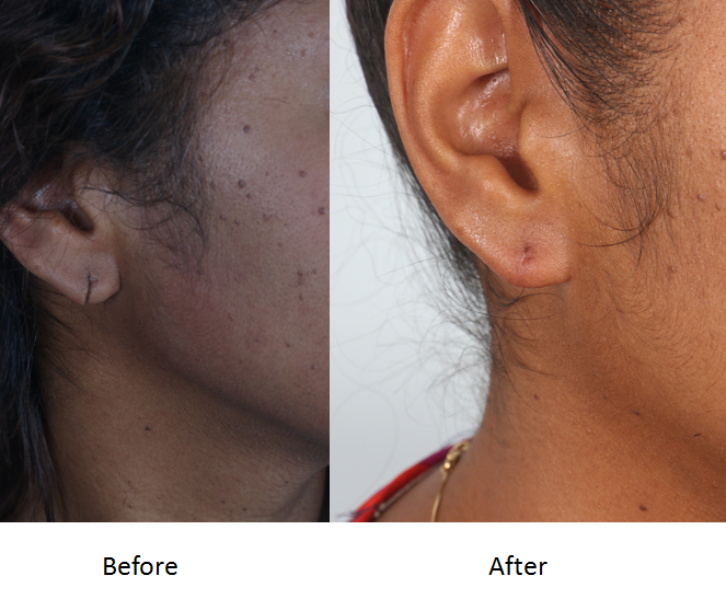 Before and After earlobe repair.png