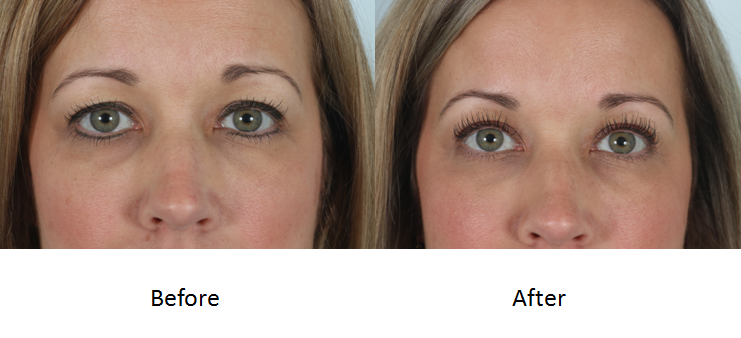 Before and after upper blepharoplasty.png