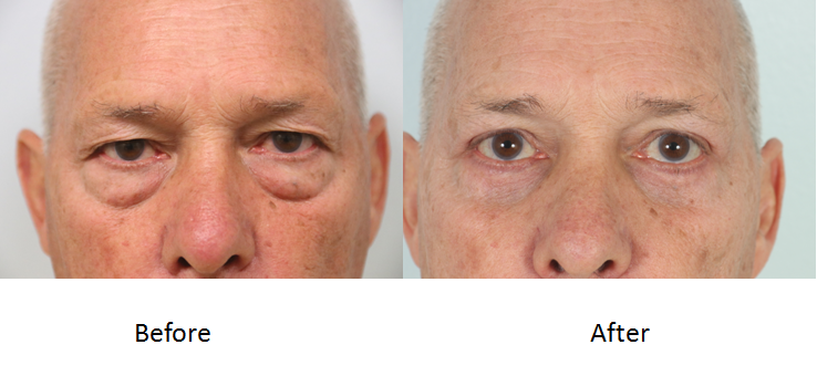 Before and after blepharoplasty.png