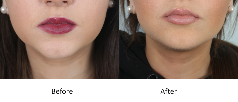 non surgical chin augmentation with fillers