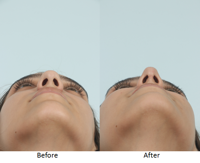 Before and After Rhinoplasty Frontal Worm's Eye.png
