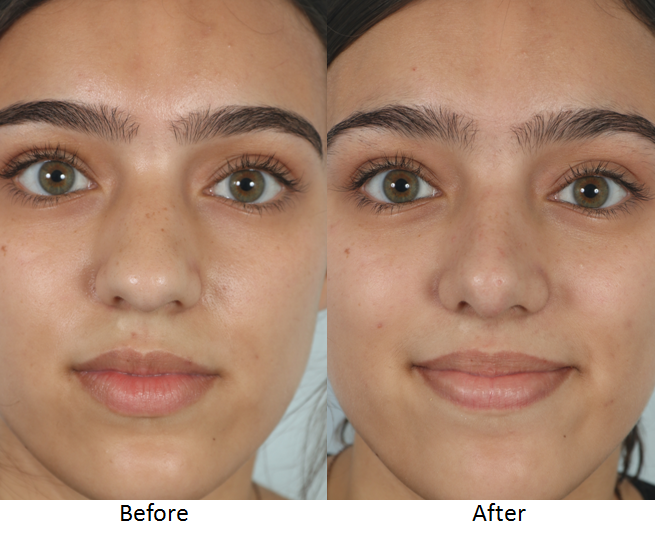 Before and After Rhinoplasty Frontal.png