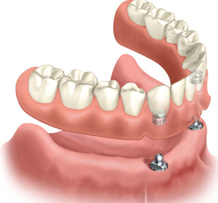 Dental dentures in Chicago by Delaware Dental